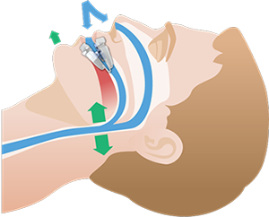 Illustrations for VitalSleep anti-snoring device.